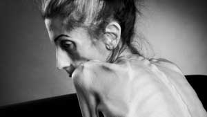 Someone Who is Battling Anorexia Needs Help