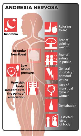 the common signs and symptoms of anorexia nervosa Warning signs and symptoms therefore, it is important to be aware of some of the warning signs of an eating disorder an individual with anorexia generally won't have all of these signs and symptoms at once, and warning signs and symptoms vary across eating disorders, so this isn't intended as a checklist.